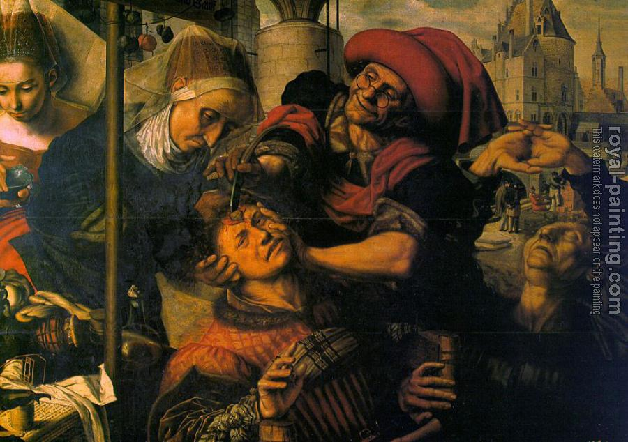 Jan Sanders Van Hemessen : The Surgeon